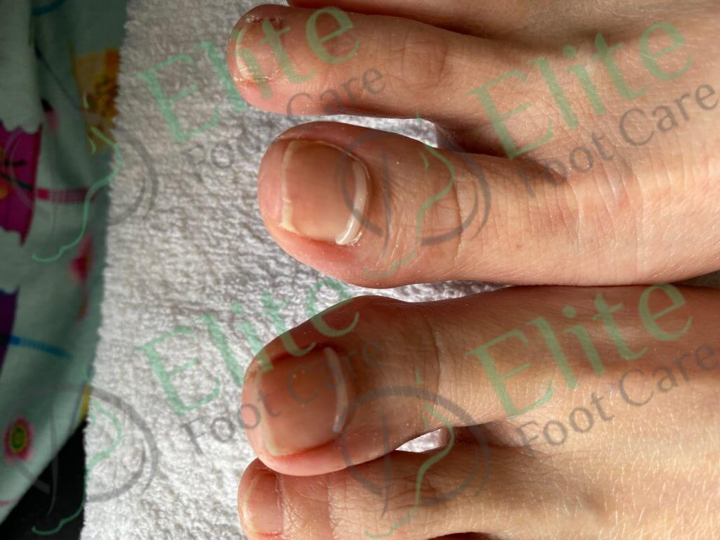 How Onyfix can help correct your ingrown toenail